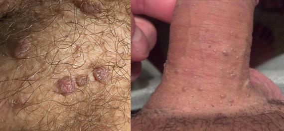 Condilomas Genitales (Verrugas)
